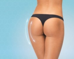 sculptra butt lift