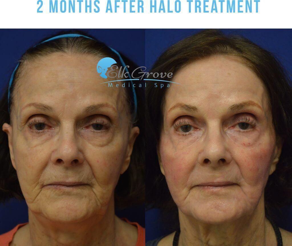 Halo Laser Skin Resurfacing In Sacramento Precision Md
