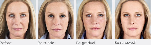 Sculptra Aesthetic gradually replaces lost collagen