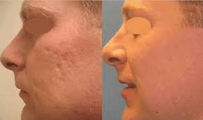 PROFRACTIONAL FOR ACNE SCARRING