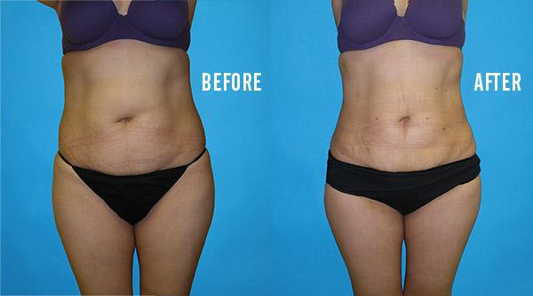tumescent liposuction results