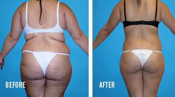 tumescent liposuction results 2
