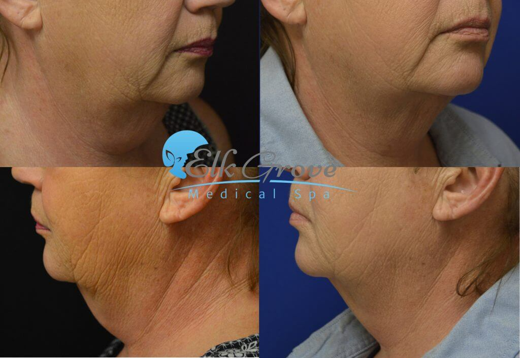 kybella double chin treatments