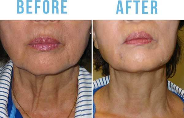 skin tightening sacramento
