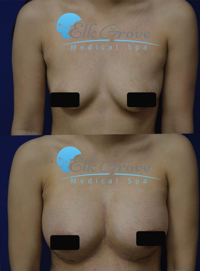 breast augmentation sacramento