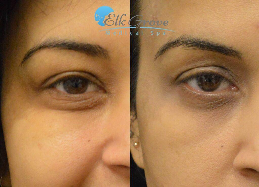 Prp Eye Bag Treatments In Sacramento Ca