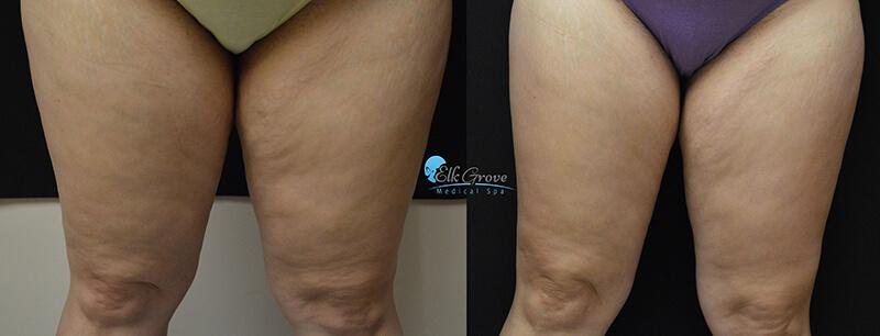 venus legacy on thighs