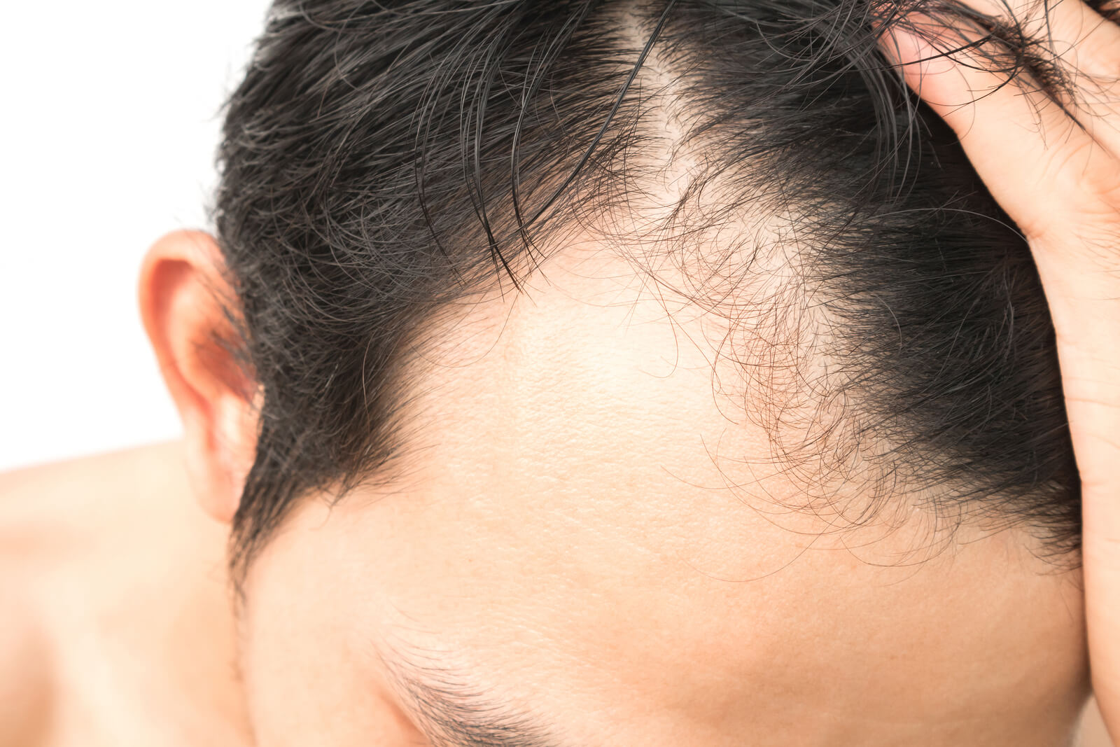 Benefits of the ARTAS Robotic Hair Transplant