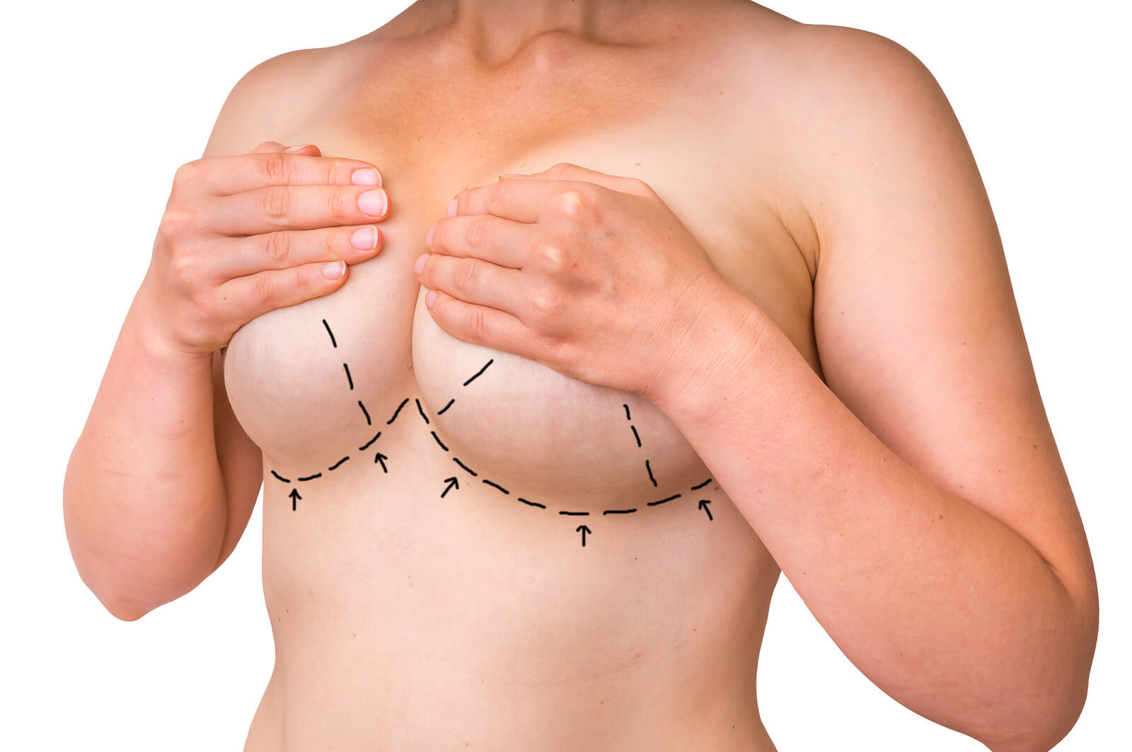 Breast Augmentation Breakdown