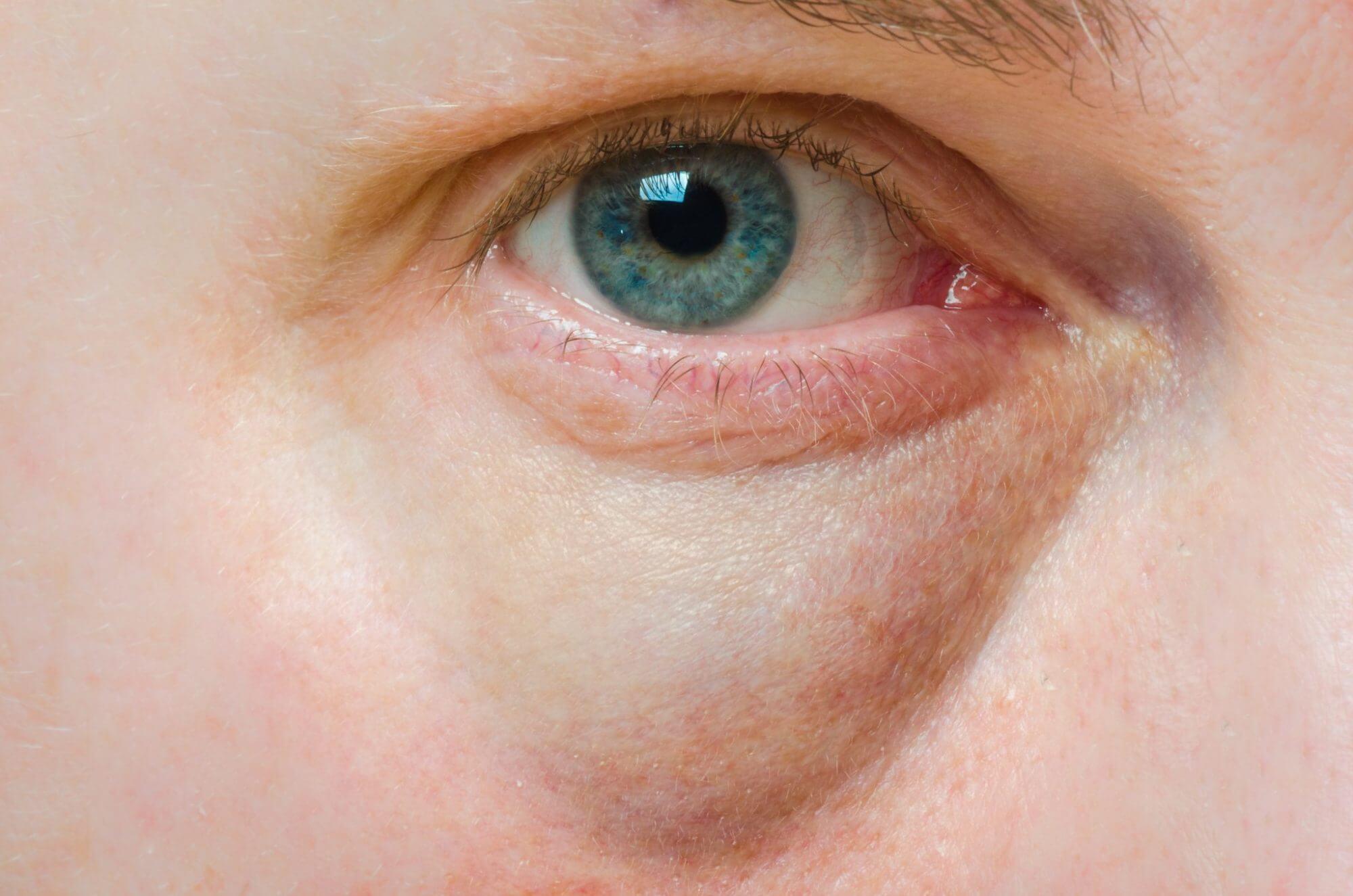 PRP Treatment Under Eyes