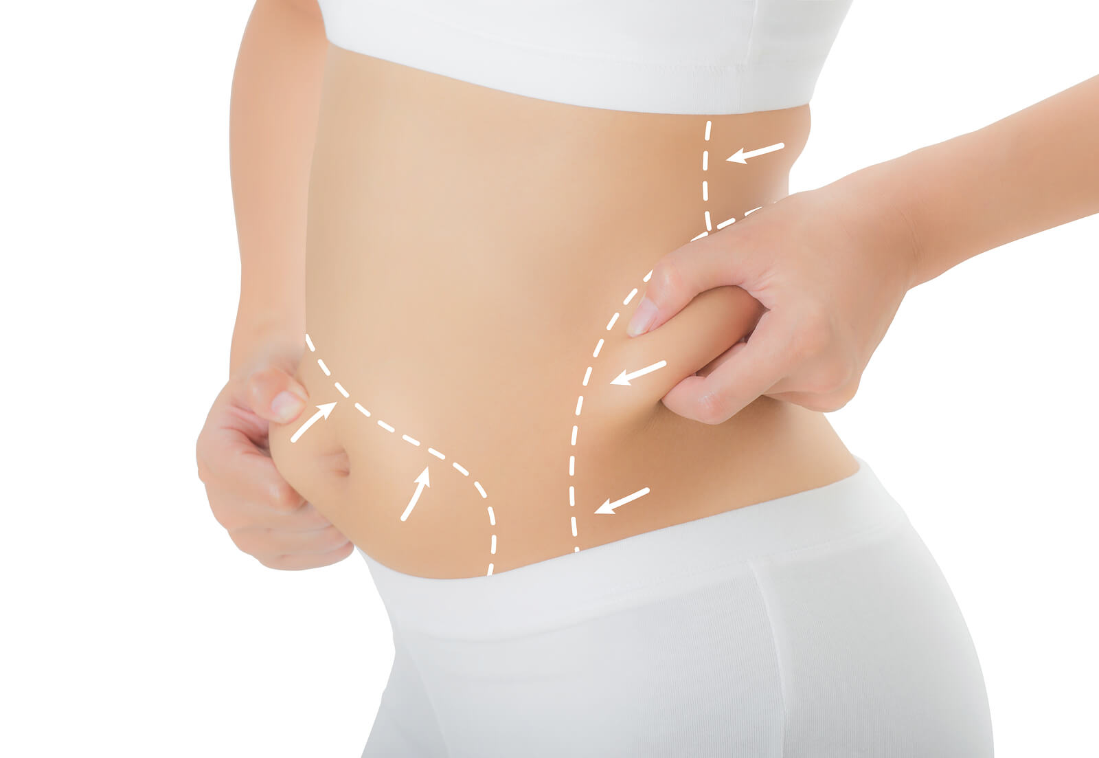 tickle liposuction