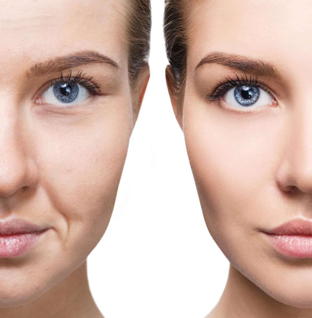 Wrinkle Treatments at Precision MD