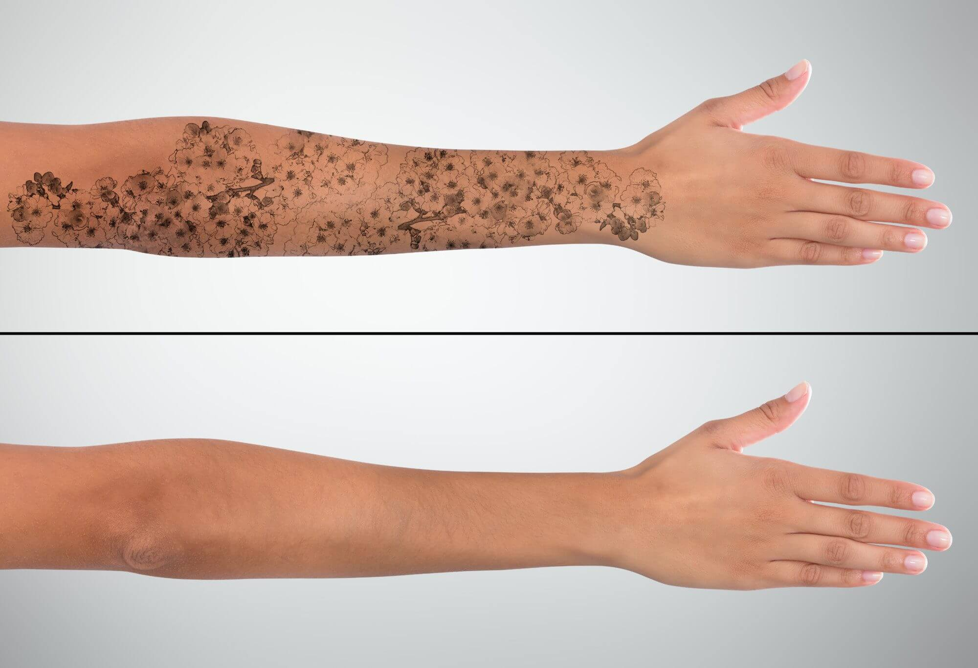 The PicoWay® Laser—The Next Level of Tattoo Removal