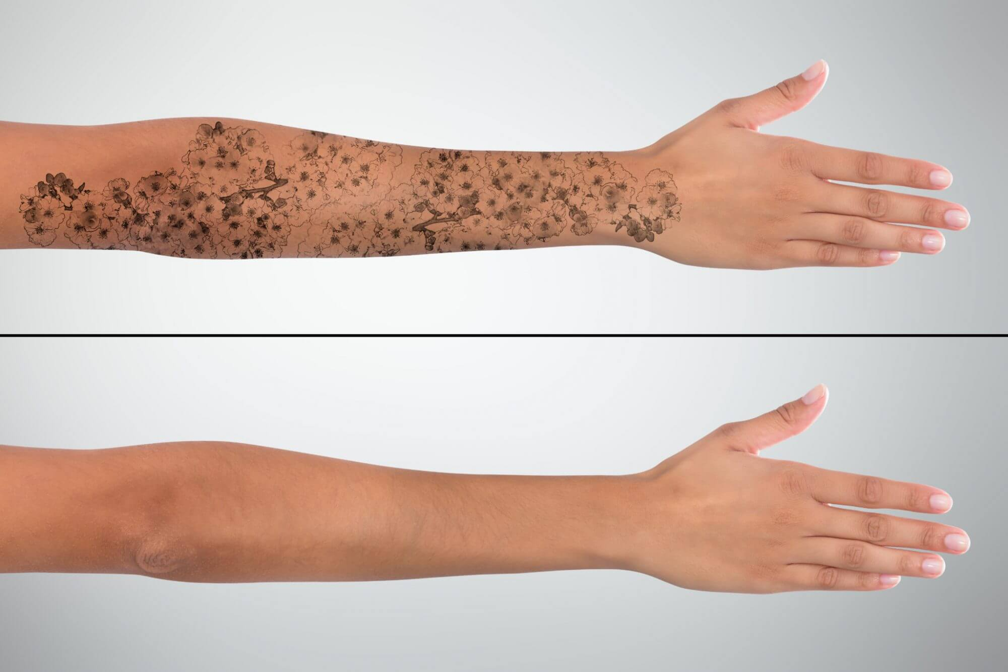 The PicoWay Laser—The Next Level of Tattoo Removal