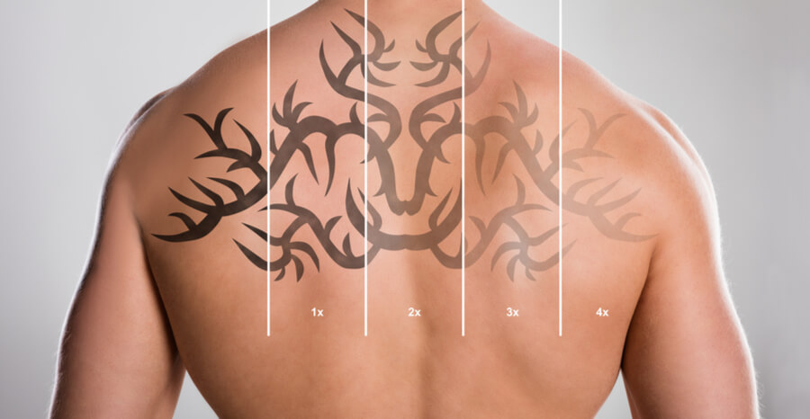 Tattoo Removal Sacramento | Laser Tattoo Removal Sacramento