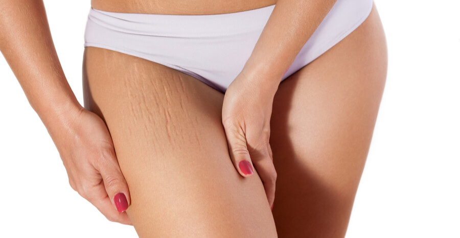 Stretch Mark Removal Sacramento Stretch Marks Treatment Sacramento