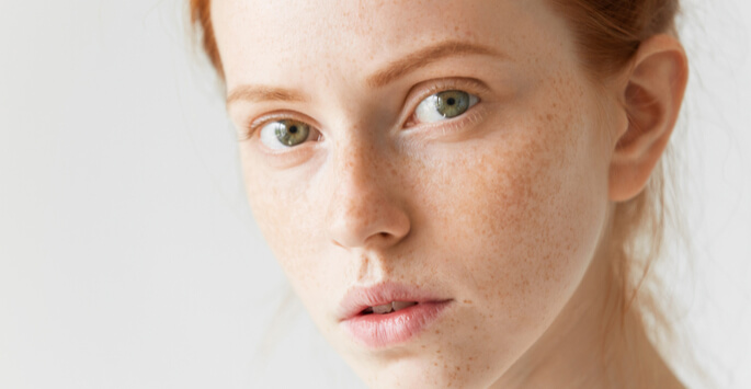 Learn More About Laser Freckle Removal in Sacramento, CA