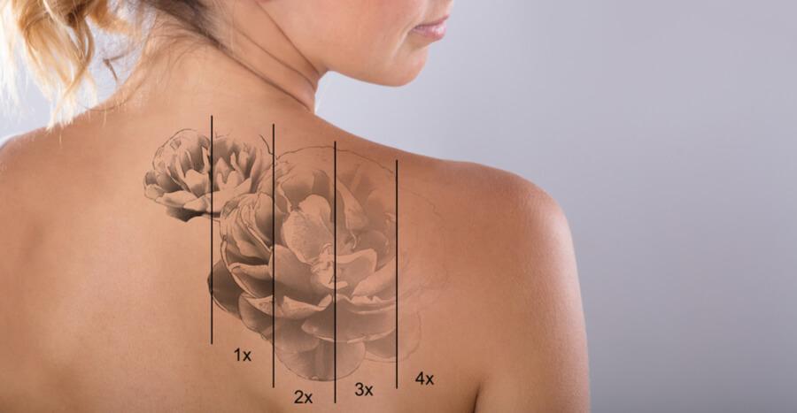 La eliminación de tatuajes en Sacramento