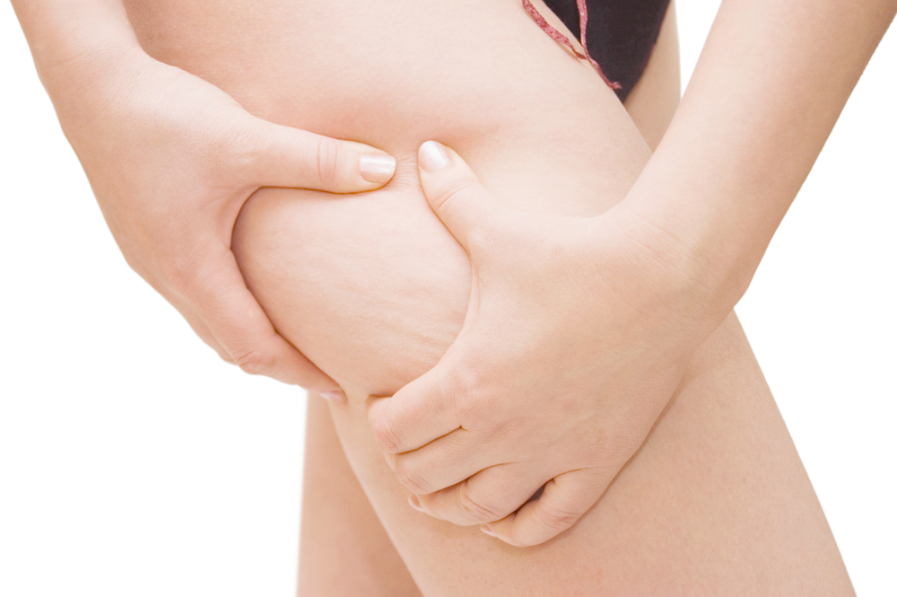 Unwanted Cellulite? How Cellfina Can Help