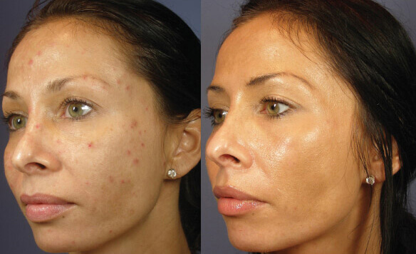 Before and after chemical peel treatment - PrecisionMD Cosmetic Surgery Center