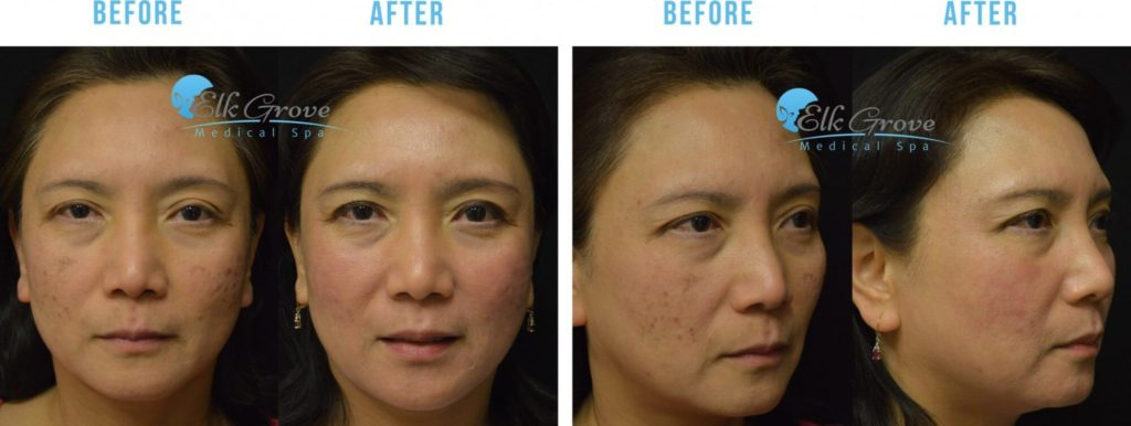 Before and After Acne Scar Treatment Sacramento CA