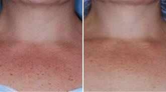 Before and after BBL chest Treatment - Precision MD