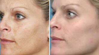 Before and after BBL Face Treatment - Precision MD