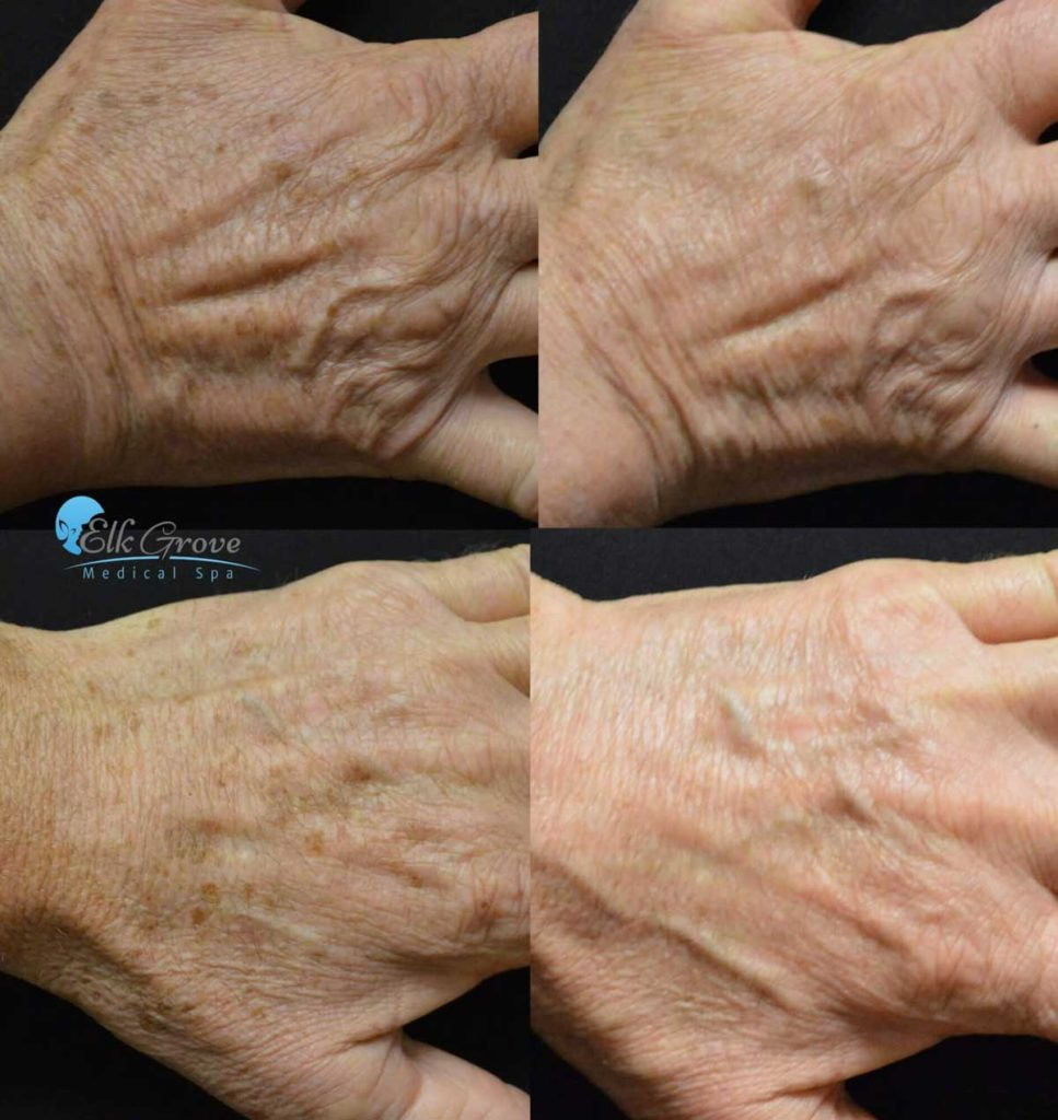 Before and After Age Spot Laser Treatment on the hand