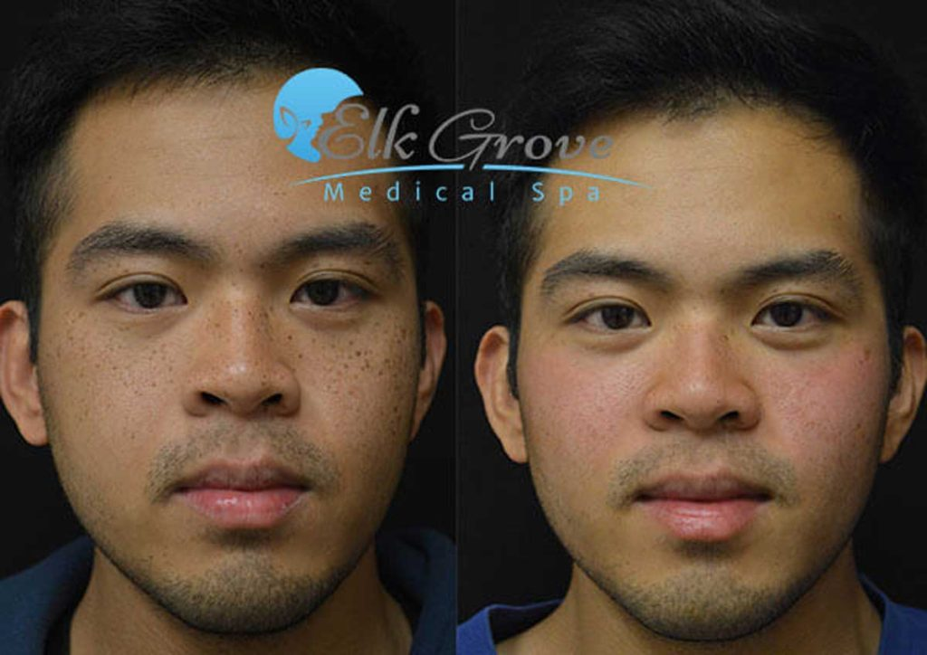 Before and After Laser Spot Removal Treatment