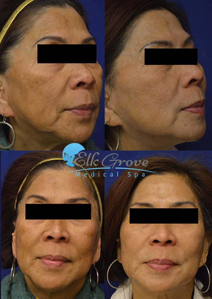 Before and After Age Spot Removal Treatment