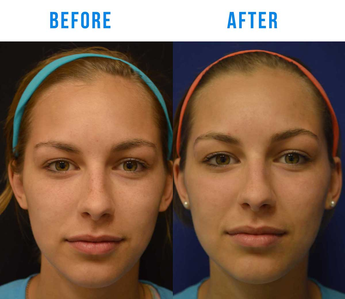 Before and After Age Spot Laser Treatment Laser Spot Removal Treatment