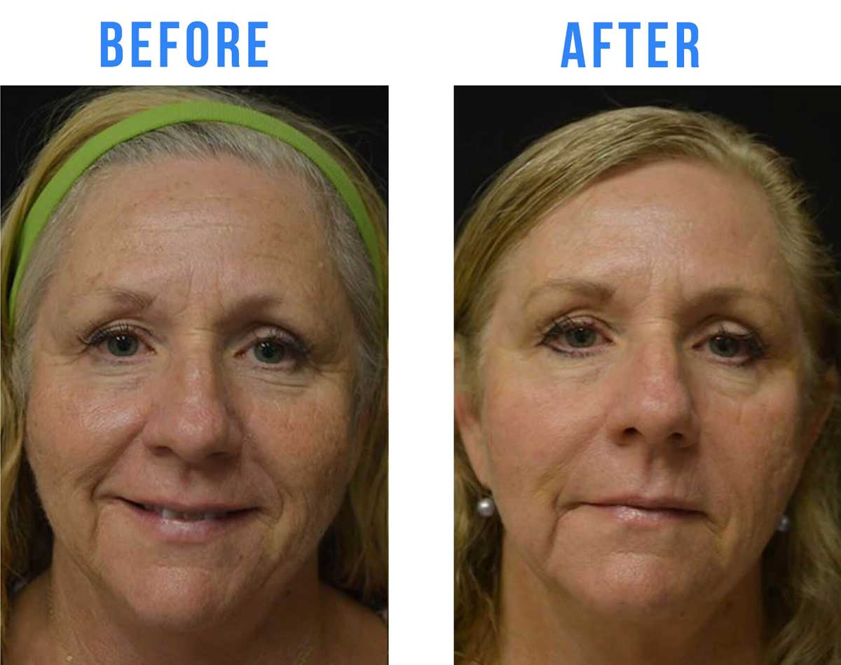 Before and After Age Spot Laser Treatment