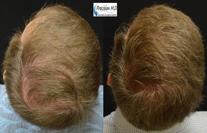 Before and After ARTAS Hair Transplant