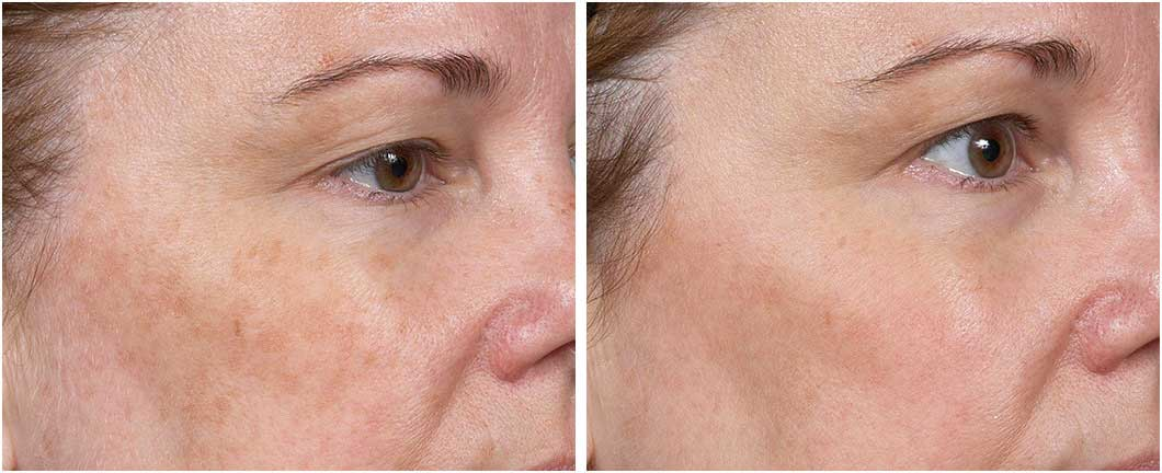 Before and after Clear + Brilliant treatment sacramento ca