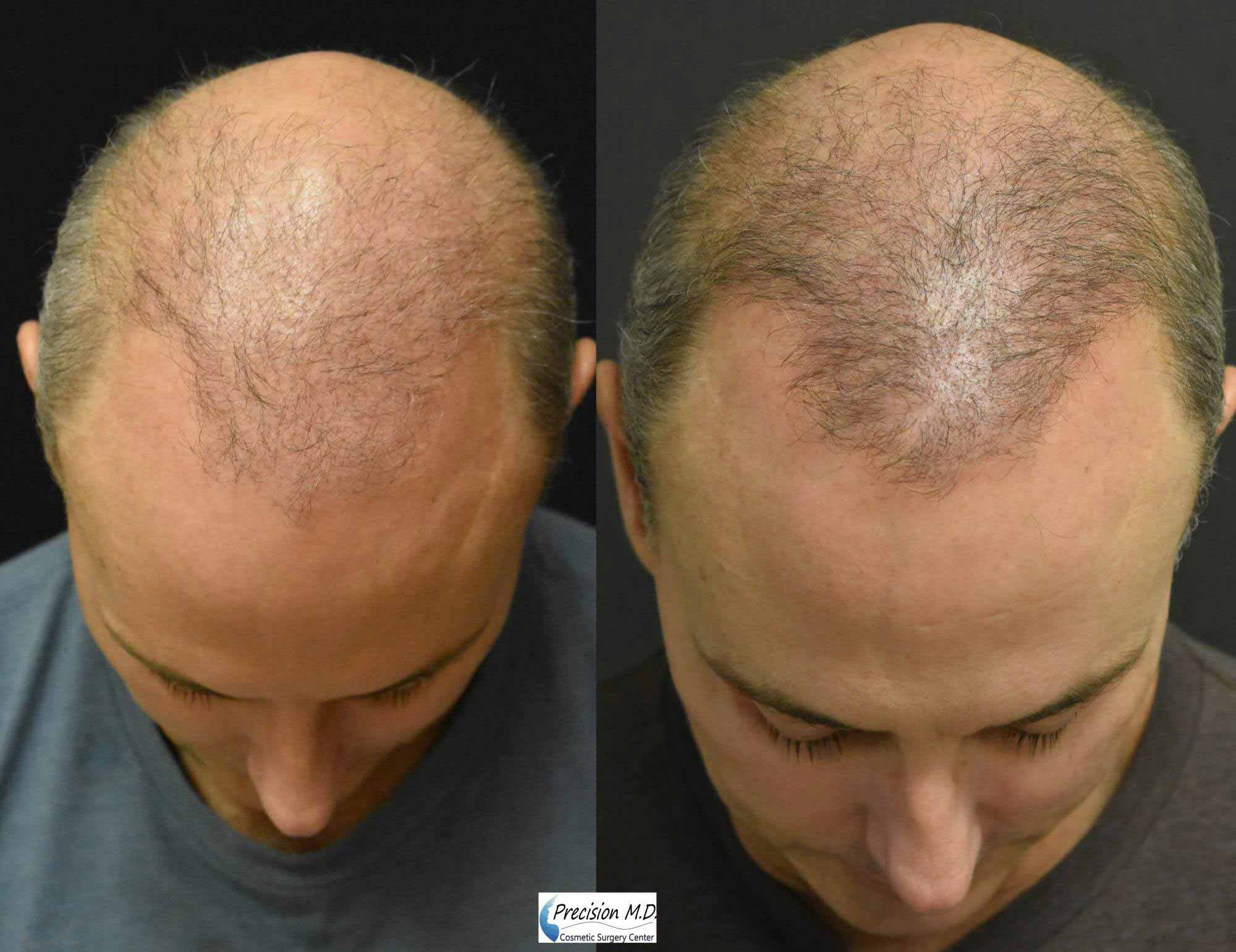 Before and After Hair Restoration showing the top of man's head