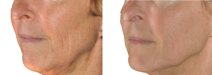 Before and after results - INFINI Wrinkle Treatment