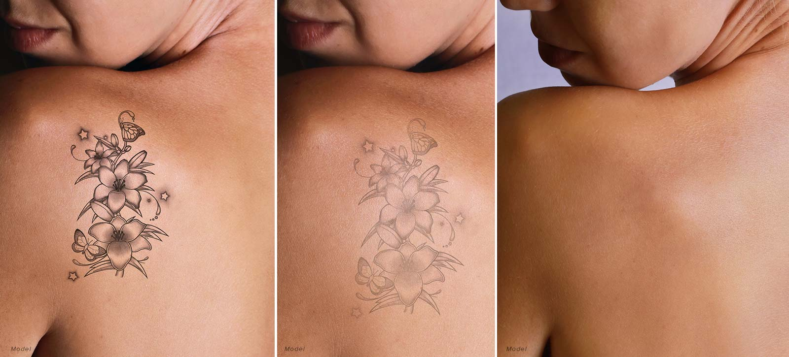 Before and after of Tattoo removal