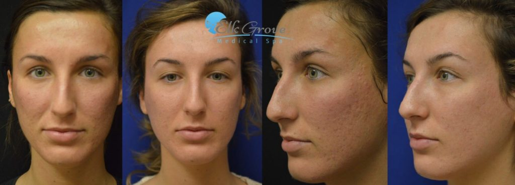 Acne Scar Removal Before and After, Halo Hybrid