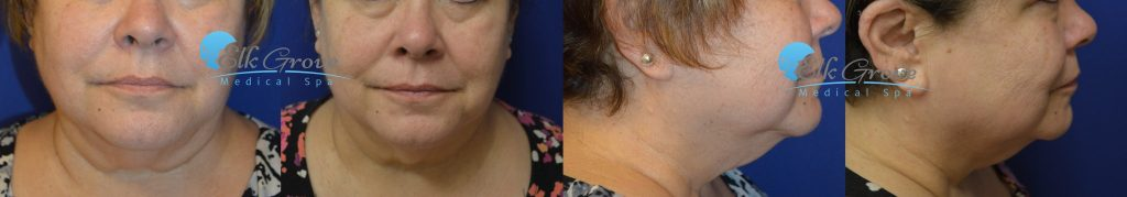 Kybella Before and After | Precision MD
