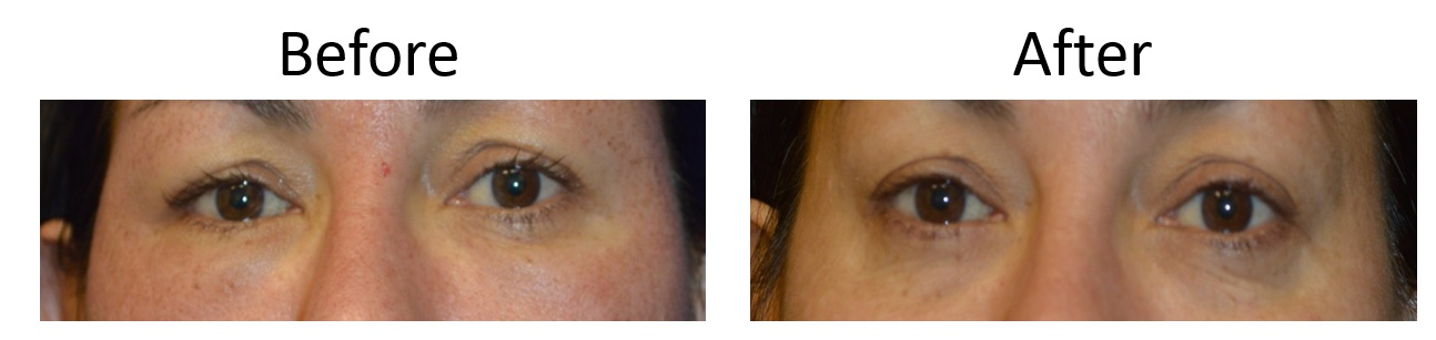Before and After Laser Eyelid Lift Sacramento