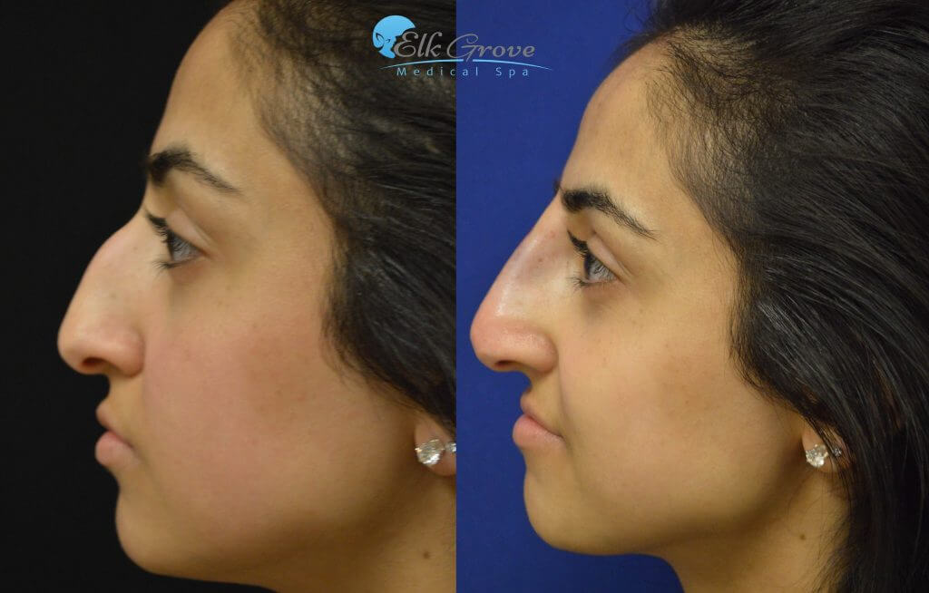 Non-Surgical Rhinoplasty Before and After Treatment