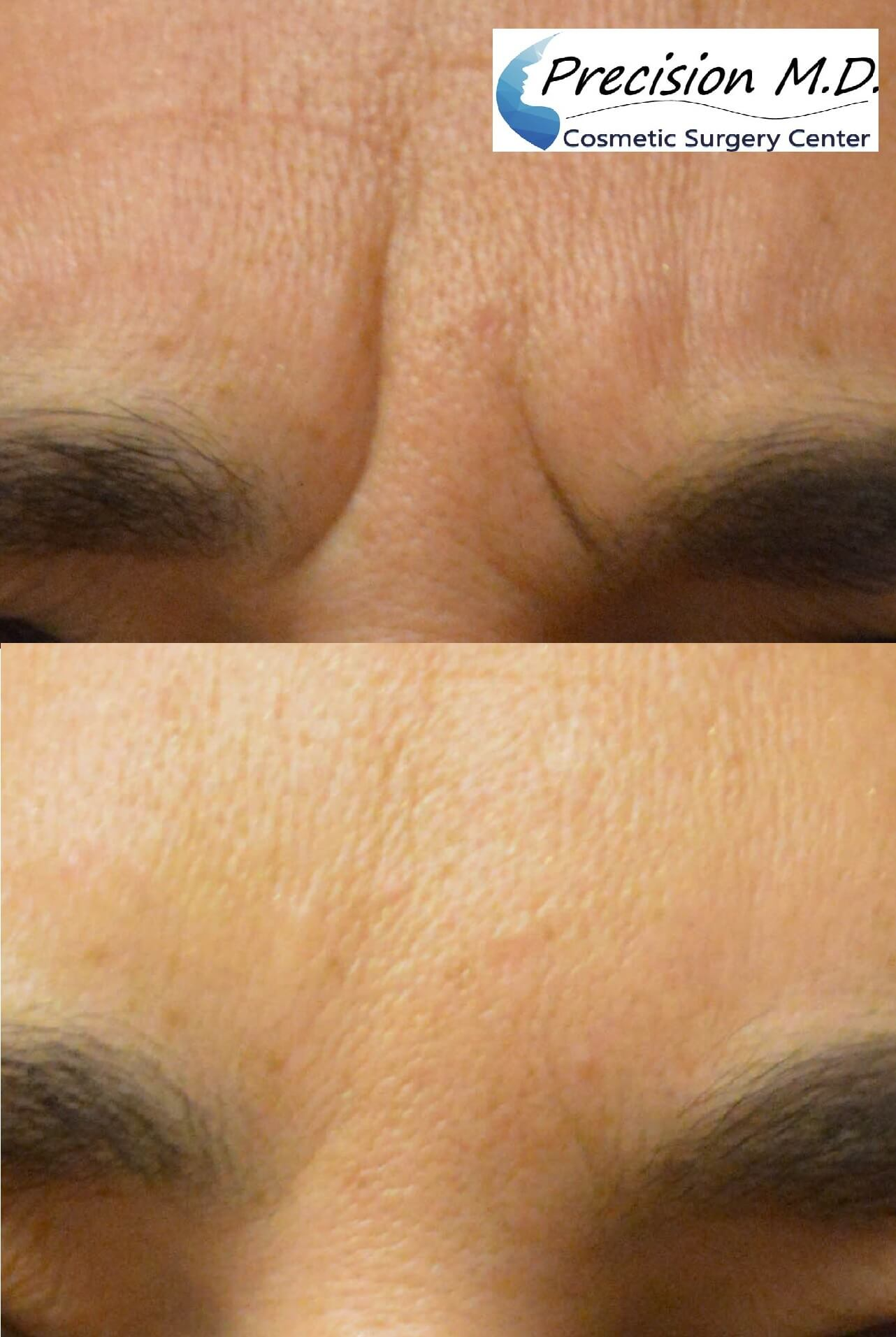 BOTOX before and after - Precision MD