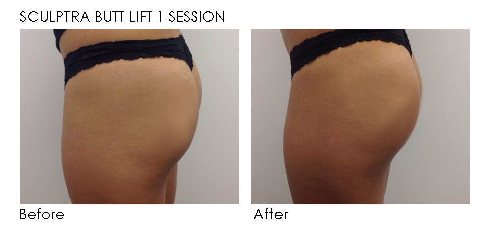 Sculptra butt lift before and after | Precision MD Sacramento, CA