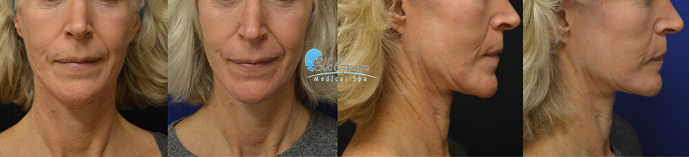 SkinTyte Before and After | Precision MD