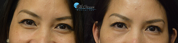 PRP Eye Bag Treatments Before and After