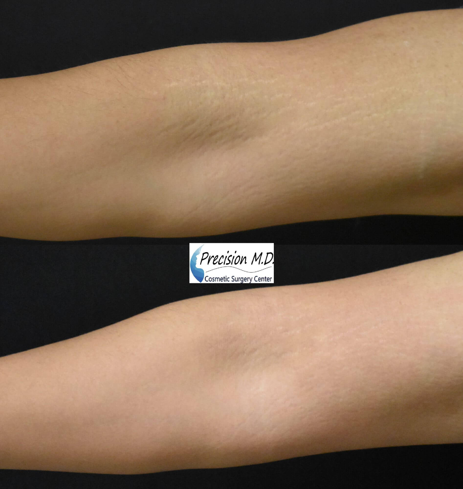 Stretch Marks Treatment before and after arms