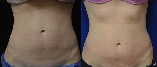 Stretch Marks Treatment before and after Infini