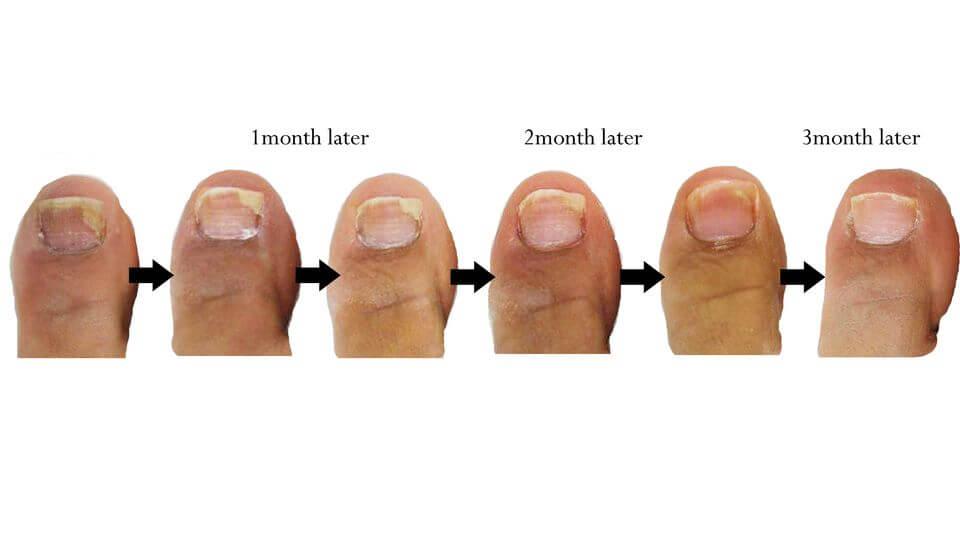 Toe Nail Fungus 3 Months post treatment