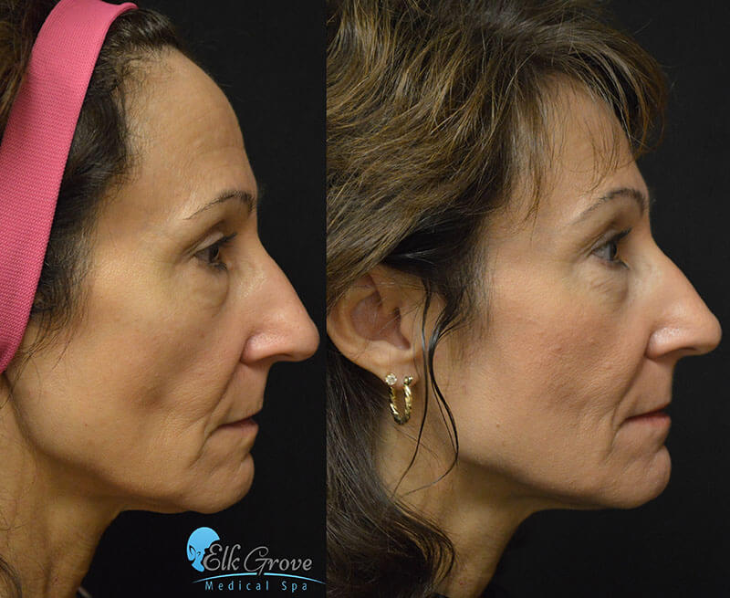 before and after ultherapy treatment on the face