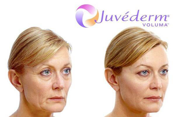 Juvéderm Voluma Before and After